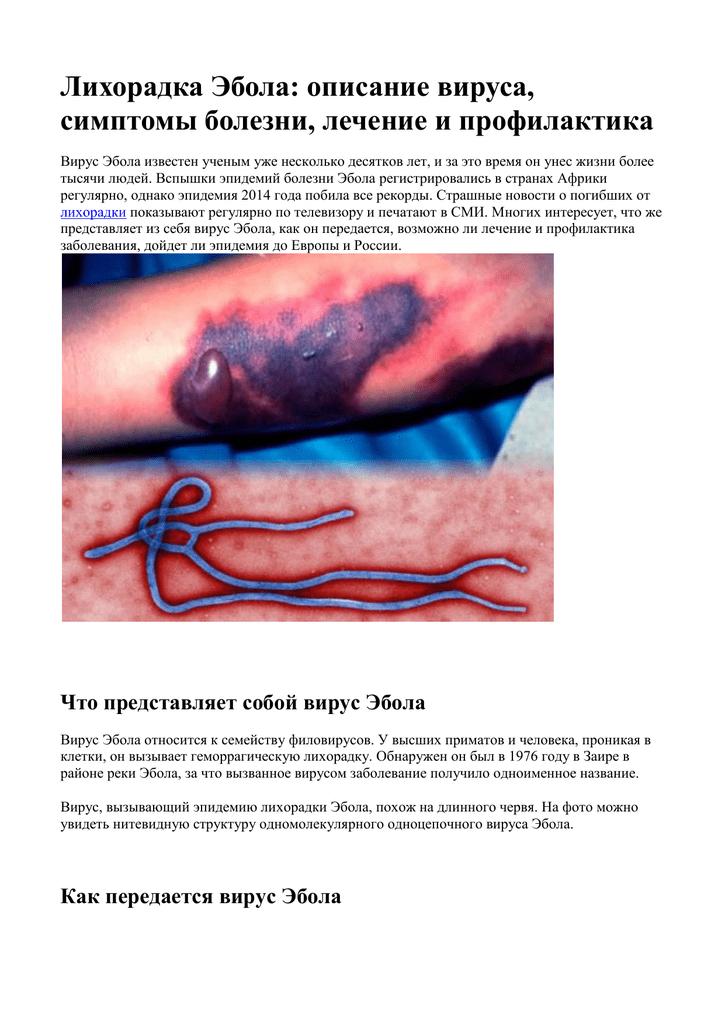 лихорадка эбола симптомы